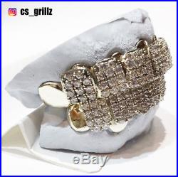 Sterling Silver Custom fit Handmade Iced Out Cubic Zirconia Prong Set Grillz